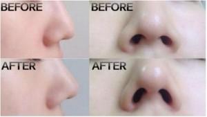鼻アイプチ画像
