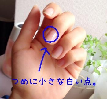 爪に白い斑点